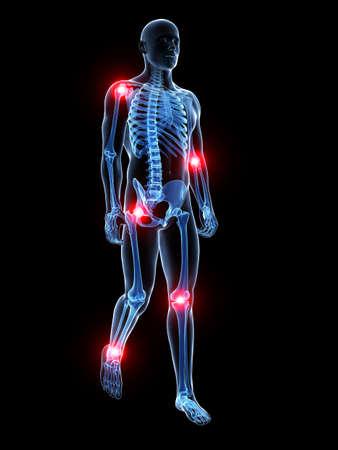 esqueleto: 3d rindi� la ilustraci�n m�dica - dolor en las articulaciones