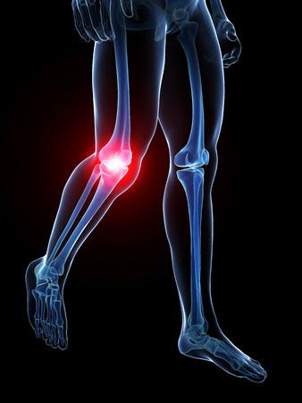 knee cap: 3d rendered medical illustration - painful knee