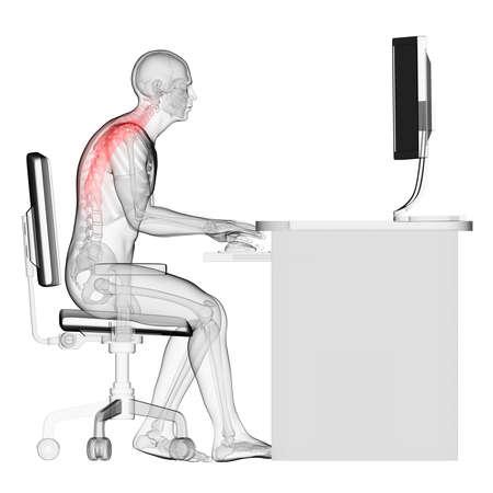 scheletro umano: 3d ha reso l'illustrazione medica - sbagliata postura seduta Archivio Fotografico
