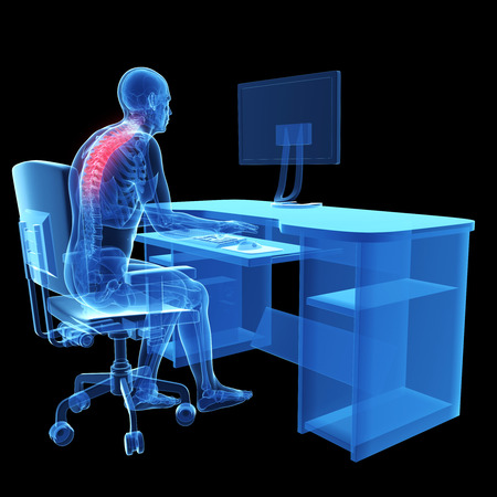 3d rendered medical illustration - wrong sitting posture Stock Illustration - 22584225