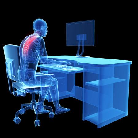 esqueleto humano: 3d rindió la ilustración médica - mal posición sentada