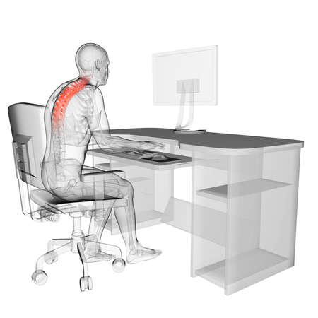 medicina ilustracion: 3d rindi� la ilustraci�n m�dica - mal posici�n sentada