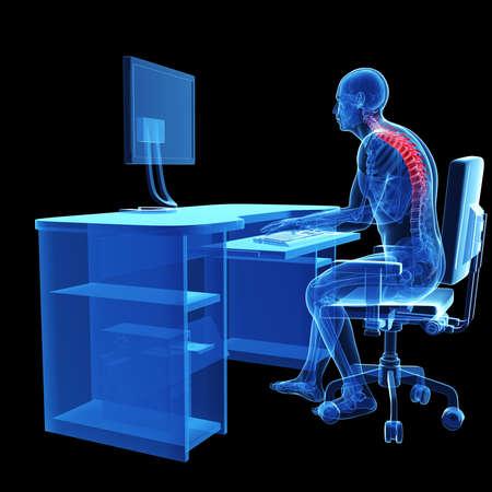 3d rendered medical illustration - wrong sitting posture Stock Illustration - 22584229