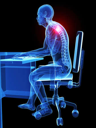 skeleton: 3d rendered medical illustration - wrong sitting posture