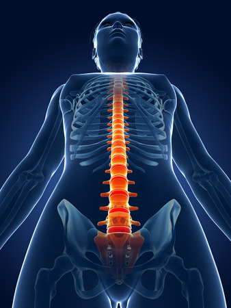 painful: 3d rendered medical illustration - painful spine