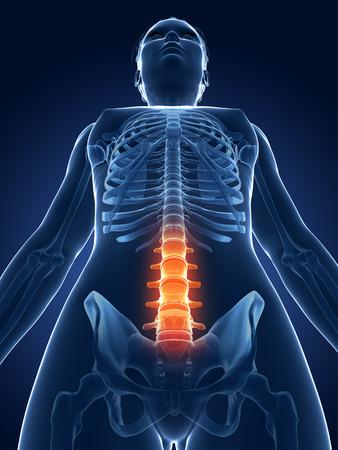 3d rendered medical illustration - painful spine