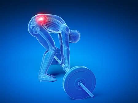 3d rendered medical illustration - wrong lifting posture illustration
