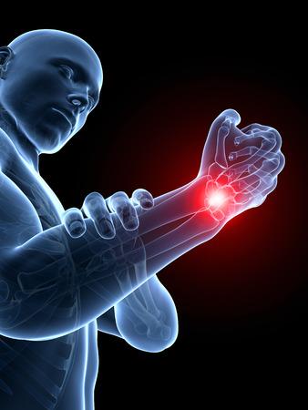 human wrist: 3d rendered medical illustration - painful wrist