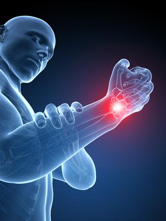 ortopedia: 3d rindió la ilustración médica - muñeca dolorosa Foto de archivo
