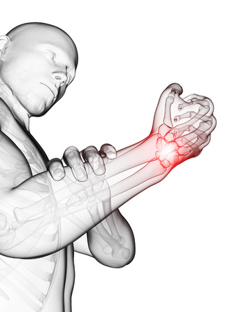 wrist pain: 3d rendered medical illustration - painful wrist