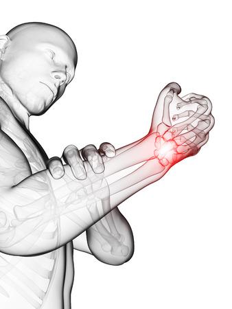 orthopedics: 3d rendered medical illustration - painful wrist
