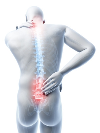 vertebrae: 3d rendered illustration of a man having a painful back and neck Stock Photo