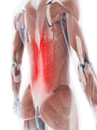 inflamed: 3d rendered illustration of a painful back