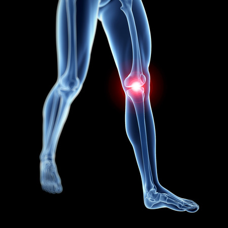 stock photos: 3d rendered illustration of a painful knee