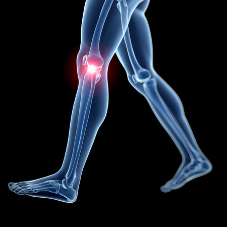 3d rendered illustration of a painful knee illustration