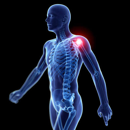 arthritis pain: 3d rendered illustration of a painful shoulder