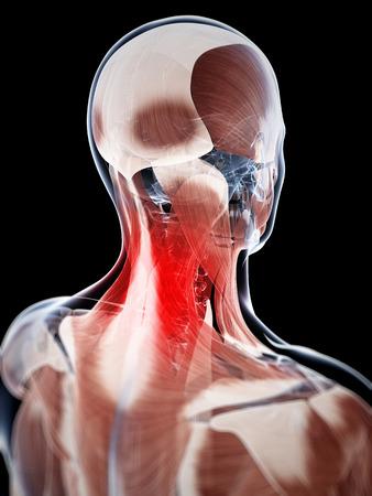 3d rendered illustration of a painful neck illustration