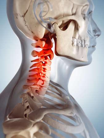 dolor de pecho: 3d rindi? la ilustraci?n de un cuello doloroso Foto de archivo
