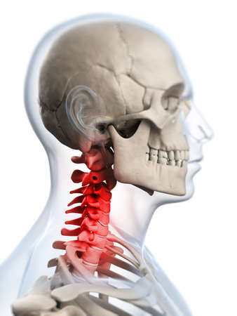 neck injury: 3d rendered illustration of a painful neck