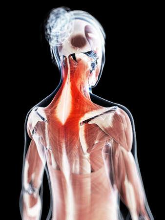 anatomy skeletal: 3d rendered illustration of a painful neck