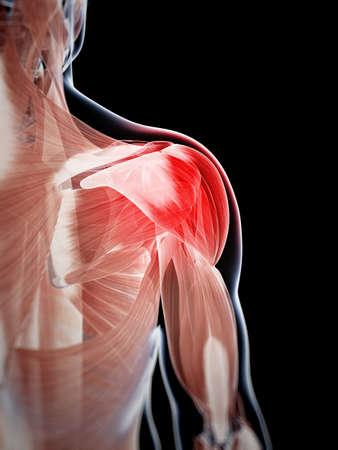 dolor muscular: 3d rindi? la ilustraci?n de un hombro doloroso Foto de archivo