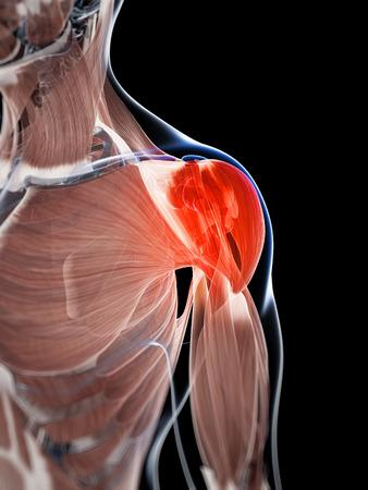 3d rendered illustration of a painful shoulder illustration