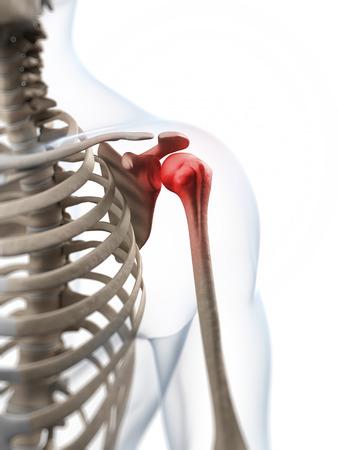 bursitis: 3d rendered illustration of a painful shoulder