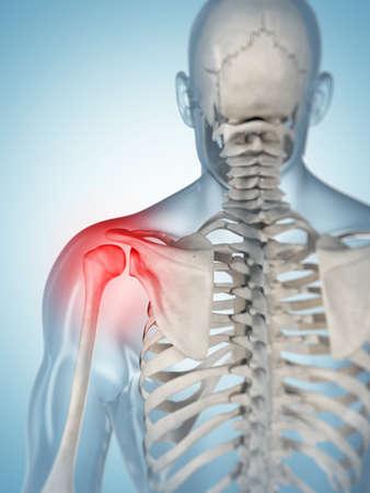 scapula: 3d rendered illustration of a painful shoulder