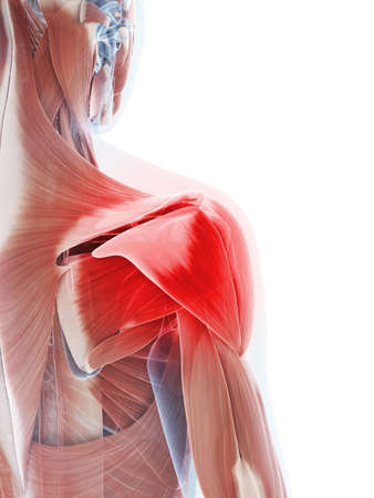 shoulder: 3d rendered illustration of a painful shoulder