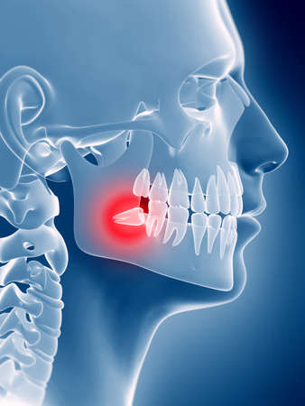 painful: 3d rendered illustration of an impacted wisdom tooth Stock Photo