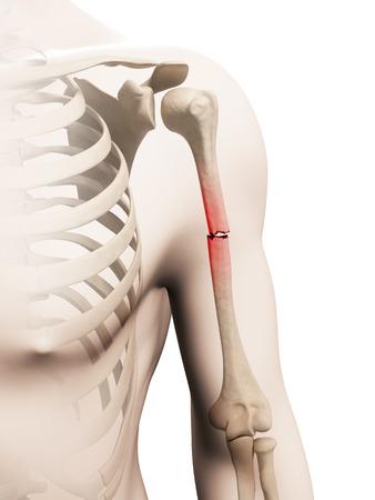 fractional: medical illustration of a borken arm bone