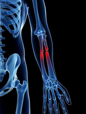 3d bone: medical illustration of a broken lower arm
