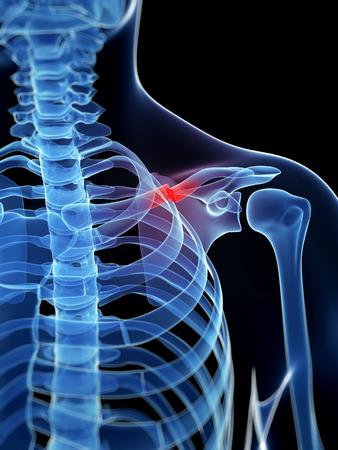 fractional: medical illustration of a broken clavicle