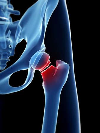 fractura: ilustraci�n m�dica de fractura de cadera