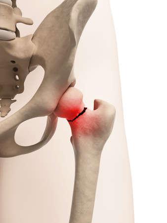 medical illustration of broken hip illustration