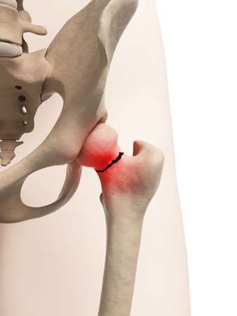 femoral: medical illustration of broken hip