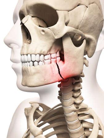fractura: ilustraci�n m�dica de un hueso de la mand�bula rota