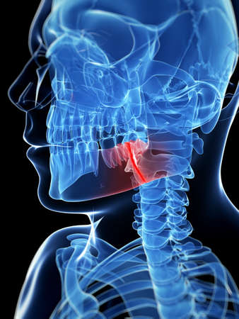 mouth pain: medical illustration of a broken jaw bone Stock Photo