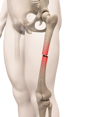 femoral: medical illustration of a broken leg bone