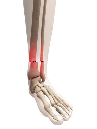fractura: ilustración médica de un hueso roto la pierna