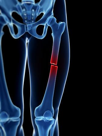pierna rota: ilustración médica de un hueso roto la pierna