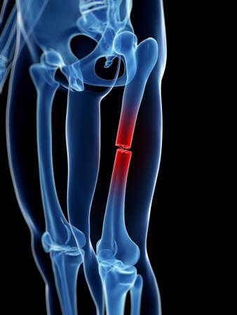 leg pain: medical illustration of a broken leg bone