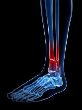 broken foot: medical illustration of a broken leg bone