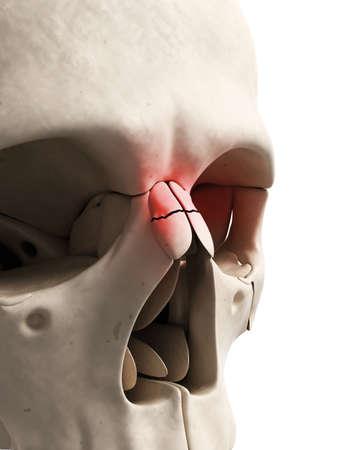fractional: medical illustration of a broken nose