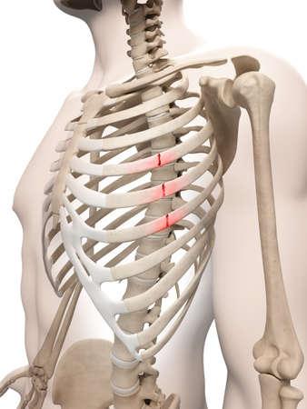 rib cage: medical illustration of broken ribs