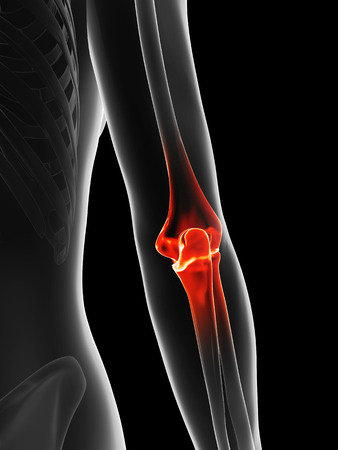 female elbow: painful elbow Stock Photo