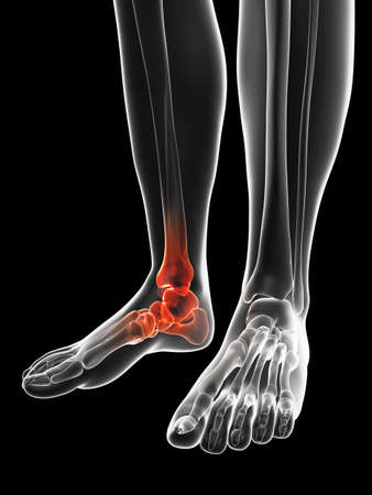 bone anatomy: painful ankle