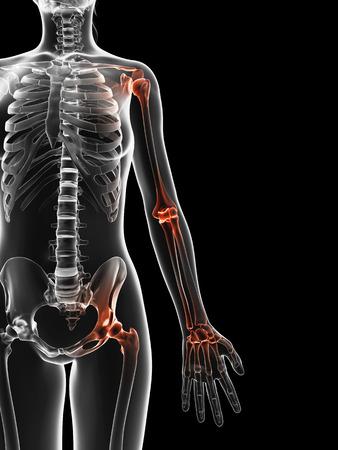 bursitis: painful joints