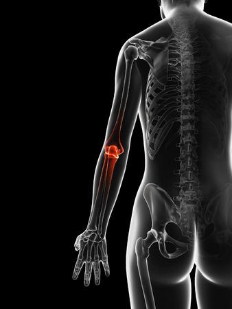 bursitis: painful elbow joint