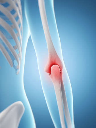 inflamed: inflamed elbow